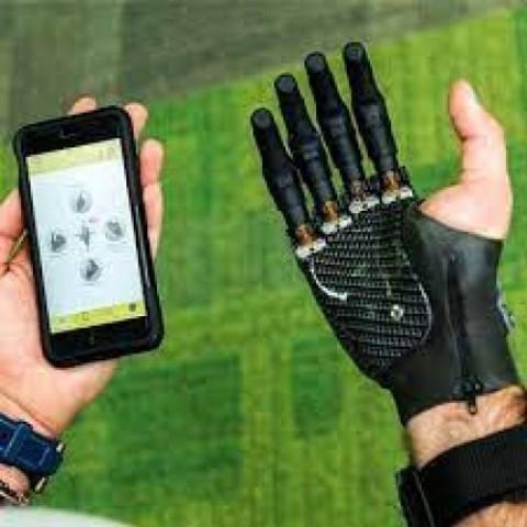 Prótese parcial de mão mioelétrica i-limb digits
